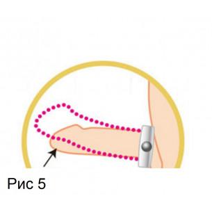 Кольцо эрекционное «Gerumas Ring»